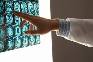 brain injuries, DuPage County personal injury attorneys